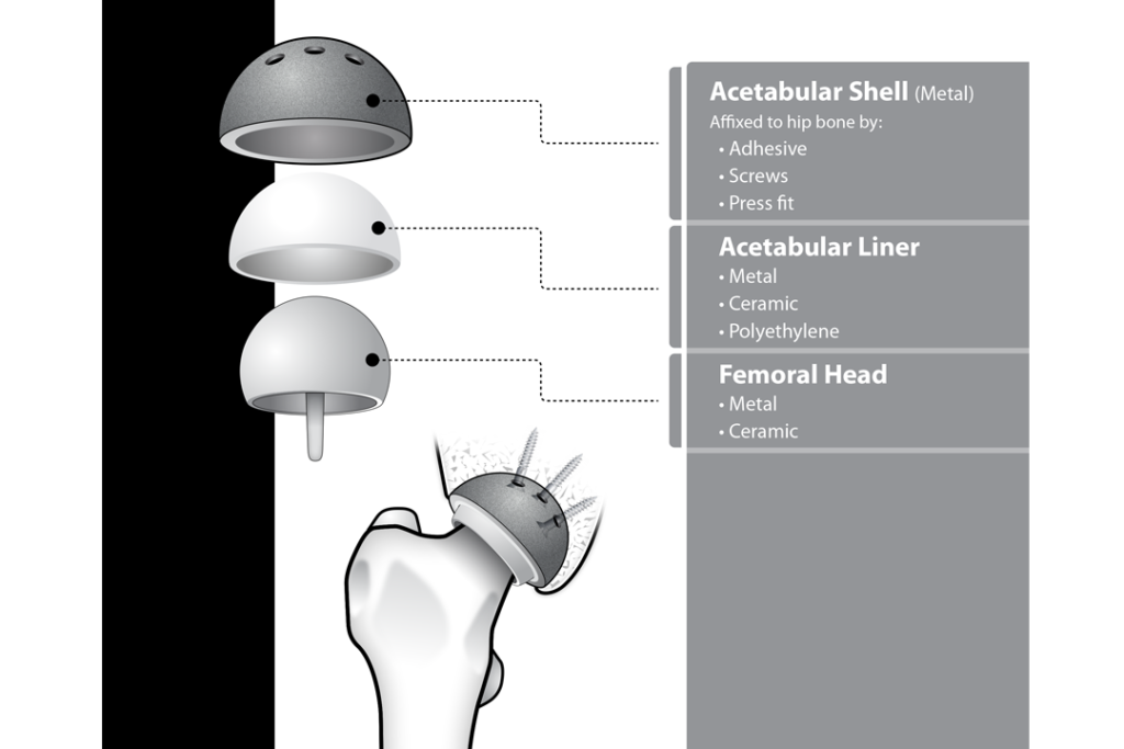 Hip Replacement Components 2